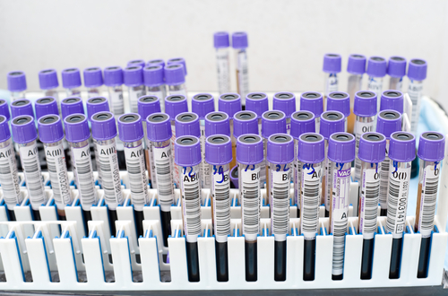 test_vials2
